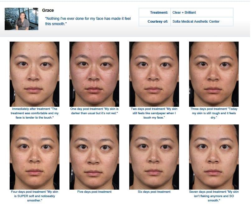 Skin Rejuvenation - Glow Medical Aesthetics