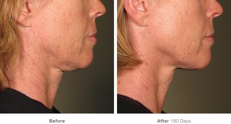 before_after_ultherapy_results_under-chin16