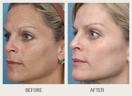 fotofacial-before-after