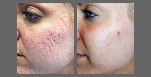 sublative acne scar
